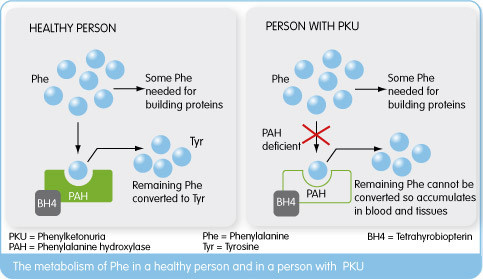 What is PKU - PKU